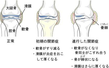変形性膝関節症構造